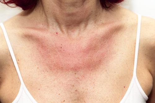 systémový lupus alergia na slnko