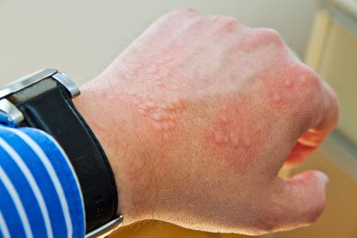 vyrazka-alergicka-reakcia