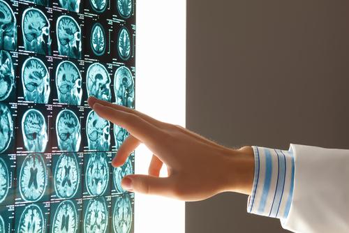 nadory-na-mozgu