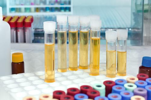 urinoterapia fosfáty