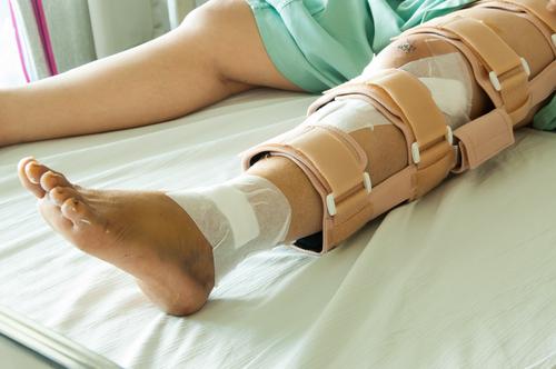 nádor prsníka zlomeniny skelet