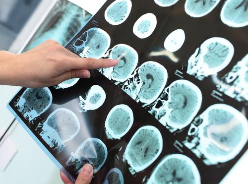 nádor na mozgu