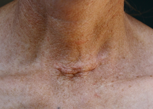 štítna-žľaza-operácia