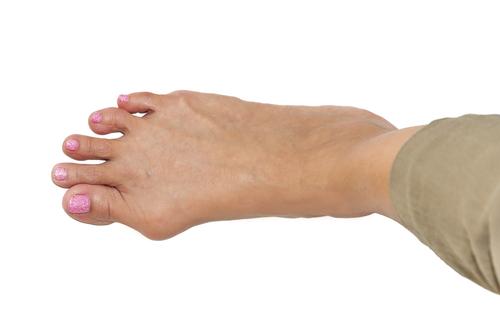 bolesti nôh hallux valgus vybočený palec