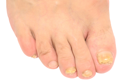 žlté nehty