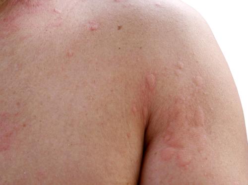 urtikaria-Žihľavka-rameno