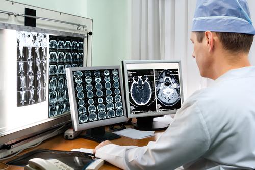 liečba-cievnej-mozgovej-príhody-CT
