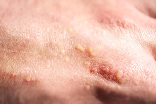 slnko a lieky alergia