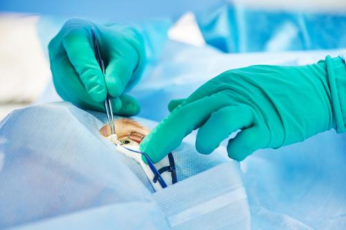 Hormonálne zmeny v tehotenstve operácia zraku