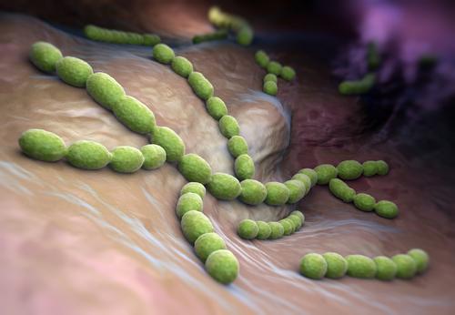 endokarditída streptokoková baktéria
