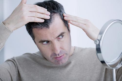 jesenné vypadávanie vlasov alopécia muži