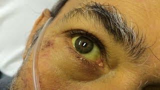 hepatitída icterus zažltnutá koža