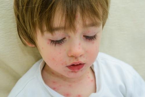 očkovanie pravda a mýty o očkovaní osýpky