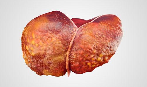 Májové hepatologické dni 2016 cirhóza pečene