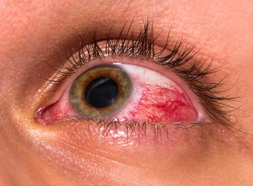 oči umelé szly