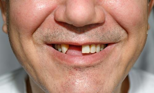 paradontitída kývanie zuba