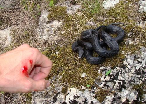 Prvá pomoc pri uštipnutím hadom jed