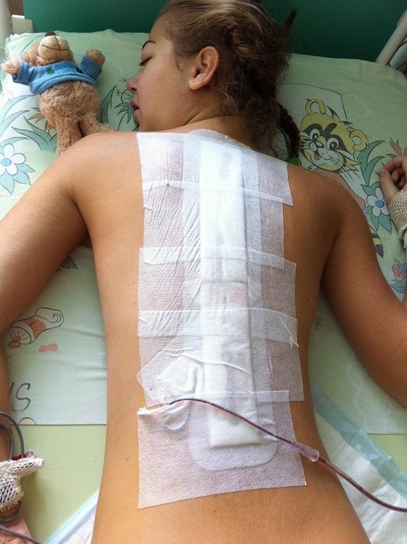 operácia skoliózy na jiske (zdroj foto: archív pacientky)