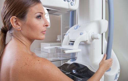 Union-zdravotna-poistovna-mamografia