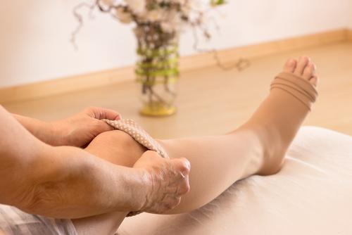 lymfedém nohy liečba