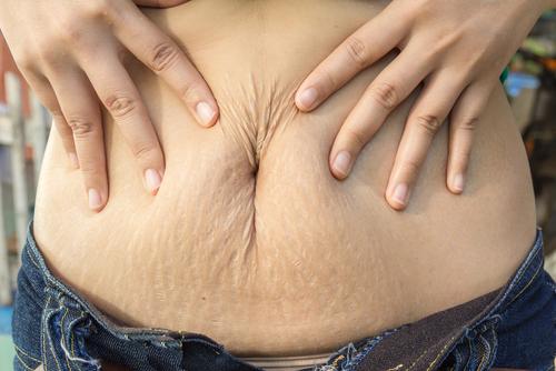 príprava na pôrod strie po pôrode