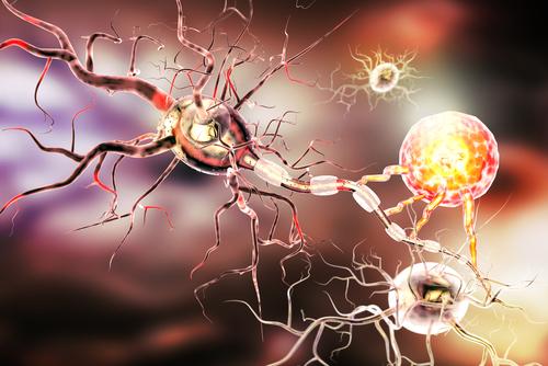 Hĺbková stimulácia mozgu neurostimulátor