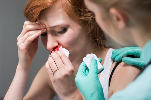 krvácanie z nosa ako zastaviť krv z nosa