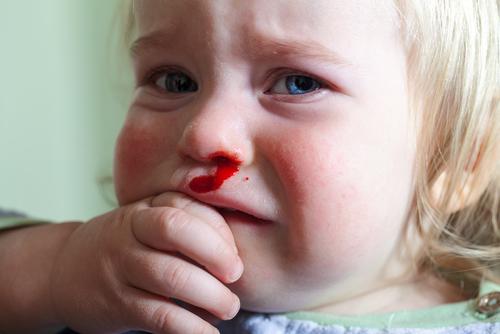 krvácanie z nosa u malých detí