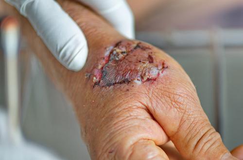 debridement liečba nekrózy