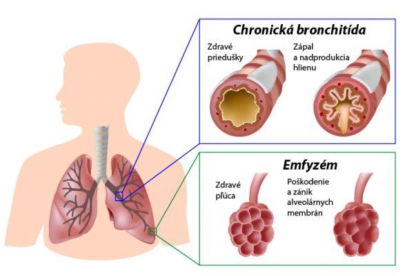 chronicka-bronchitida-emfyzem