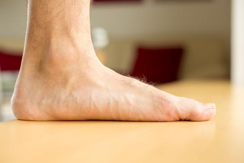 Marfanov syndróm ploché nohy