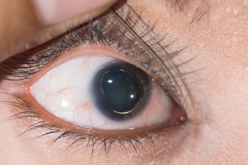 Marfanov syndróm zrak odlúčenie sietnice