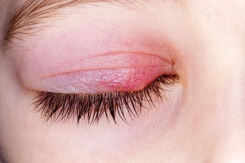 jačmeň v oku liečba