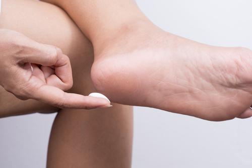 masť na popraskané päty Zhrubnutá koža na nohách