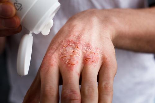 seboroická dermatidída obrázky