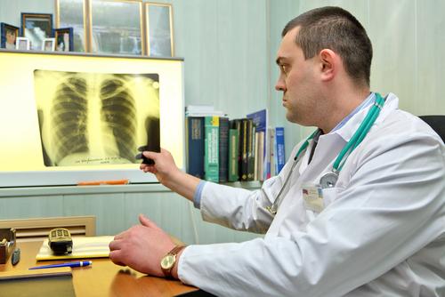 plucna arteriova hypertenzia diagnostika