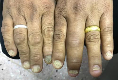 Psoriaticka artritida psoriáza a invalidný dôchodok