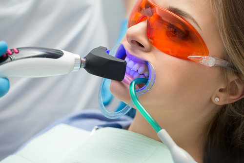 bielenie zubov laserom