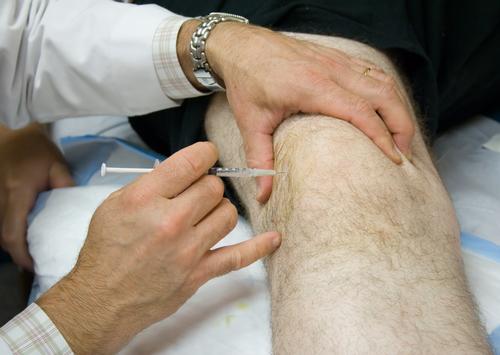 kyselina hyalurónová injekcie do kolena