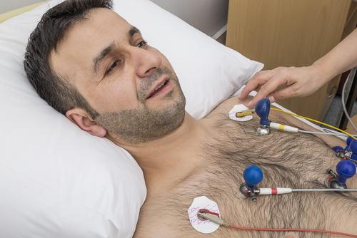infarkt myokardu EKG
