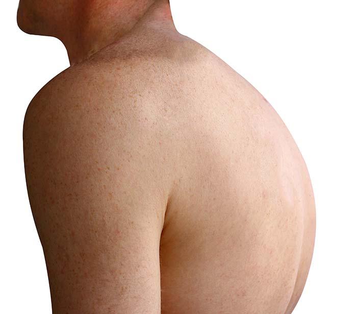 choroby chrbtice, Bechterevova choroba