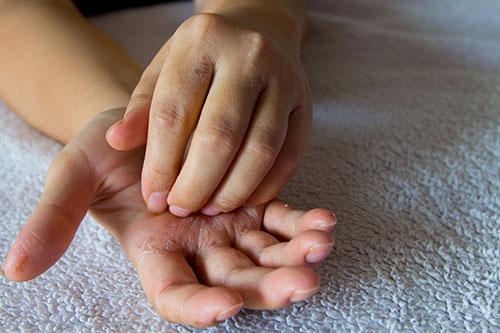 kožné-choroby-biologicka-liečba
