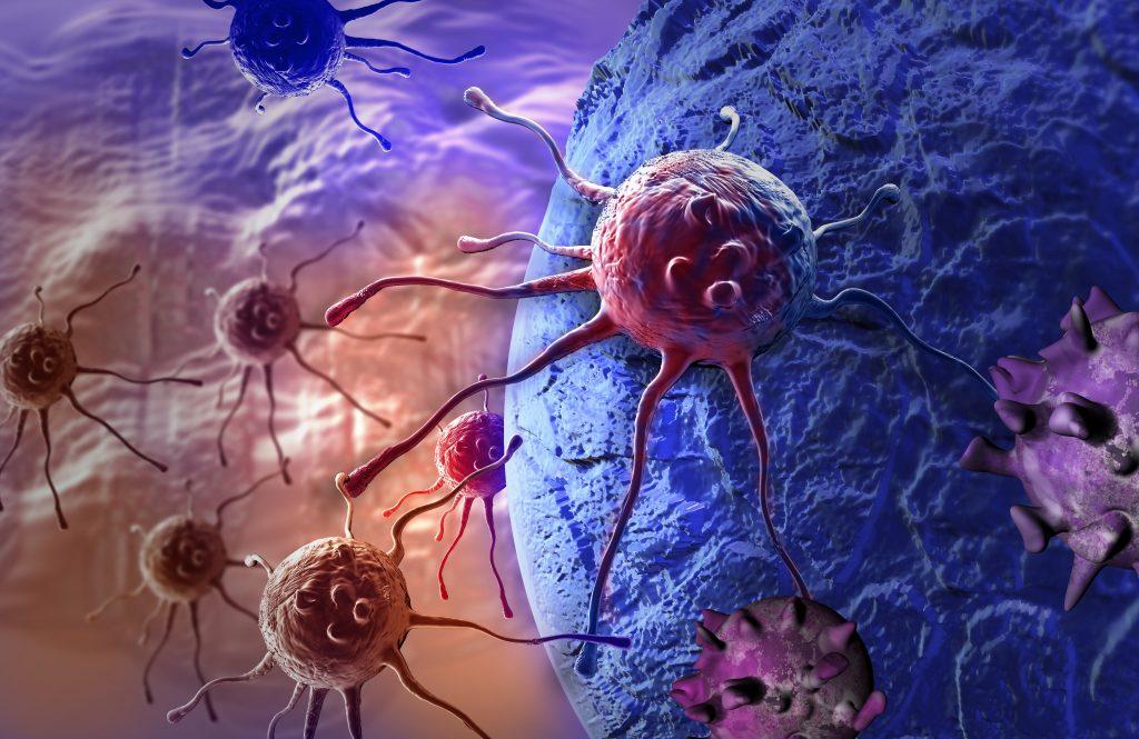 rakovina-hrubého-čreva-kolorektálny-karcinóm