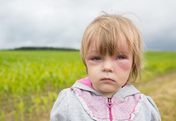 alergia-u-detí-príznaky-prejavy