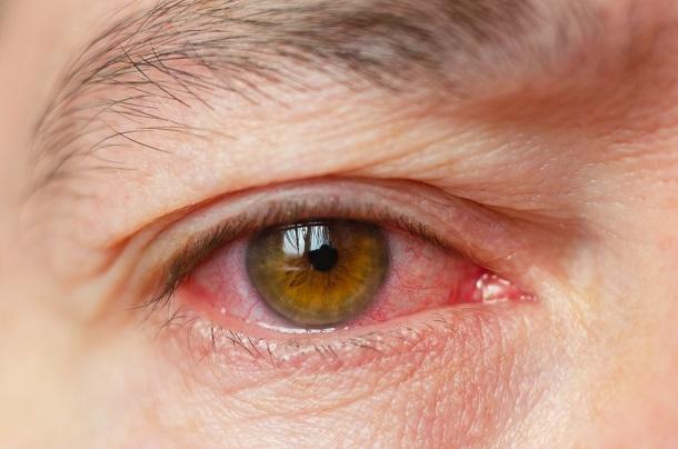 toxoplazmóza-v-oku
