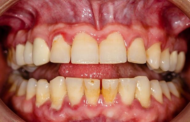 parodontítída-liečenie