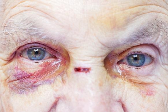 fyzické-týranie-seniorov