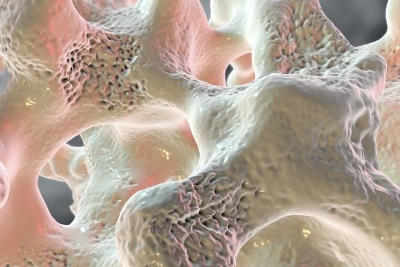 Osteopenia-príznaky