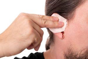 krvácanie z ucha