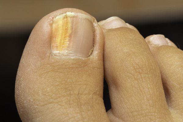 onychomykóza-na-nohách